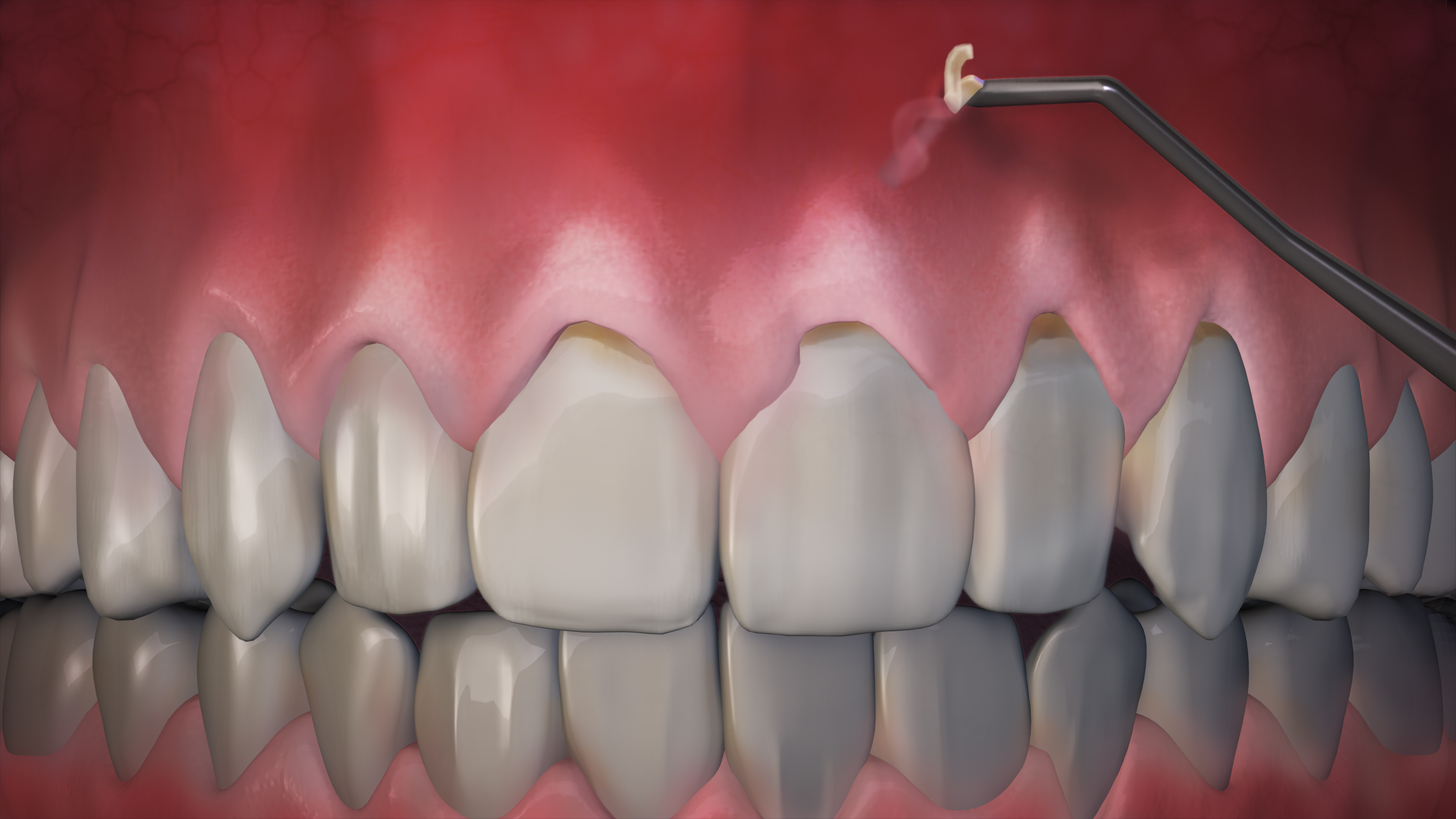 Collagen insterted into gums to hold into place and promote healing.