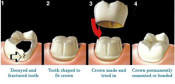 Joplin, MO Cosmetic Dentist: Dental Crowns:Associates of Dental Arts