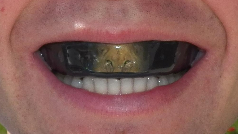 Associates of Dental Arts Custom Fit Athletic Mouth Guard