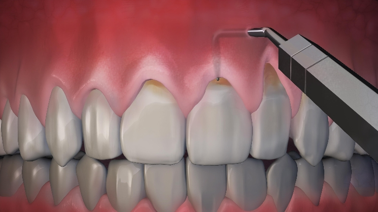 Associates Of Dental Arts Blog The Pinhole Surgical