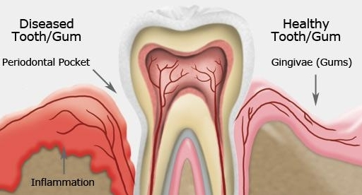 healthy gums vs gums with periodontal disease